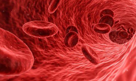 Intravenöser Sauerstoff bei Durchblutungsstörungen